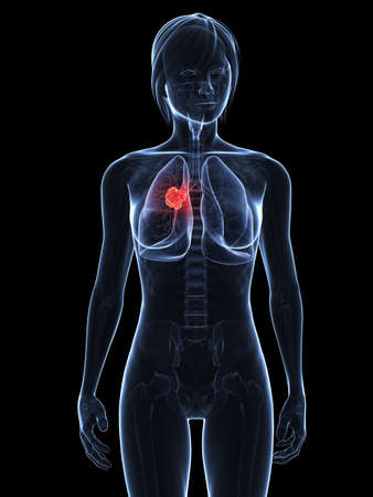 transparent female body with tumor in lung Stock Photo - 7308762