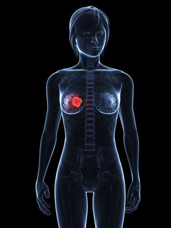 transparent female body with tumor in breast photo