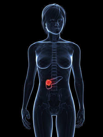 metastasis: transparent female body with tumor in pancreas