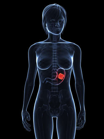 infected: transparent female body with tumor in stomach Stock Photo