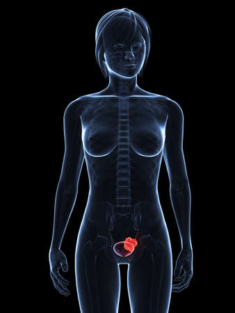 transparent female body with tumor in bladder photo