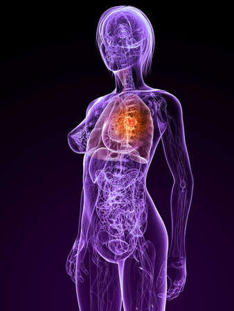 metastase: transparent female anatomy with tumor in lung Stock Photo