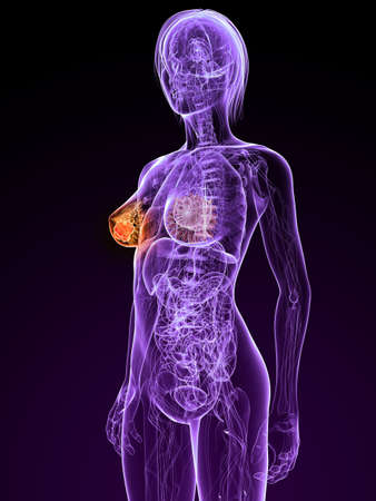 transparent female anatomy with tumor in breast photo