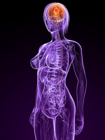metastase: transparent female anatomy with tumor in brain Stock Photo