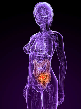 transparent female anatomy with tumor in colon Stock Photo - 7308809