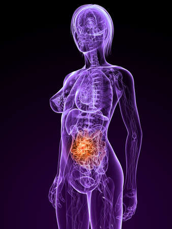 transparent female anatomy with tumor in small intestines photo