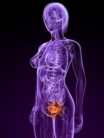transparent female anatomy with tumor in bladder Stock Photo - 7308818