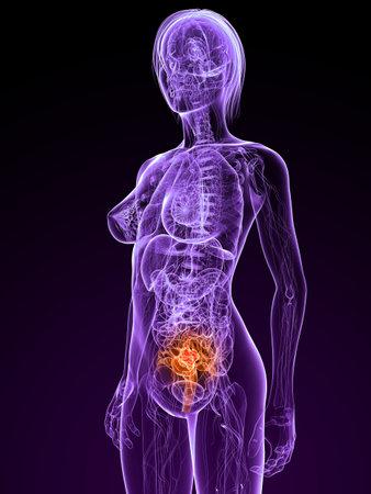 transparent female anatomy with tumor in uterus photo