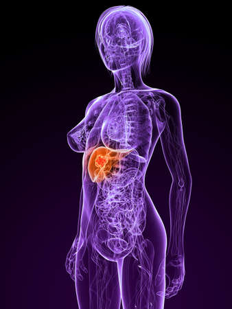 metastase: transparent female body with tumor in liver Stock Photo