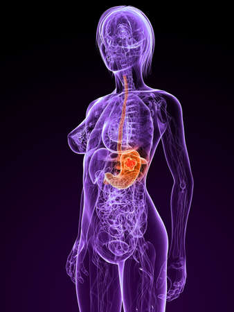 transparent female body with tumor in stomach Stock Photo - 7308808