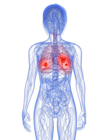 colon cancer: transparent female body with tumor in lung