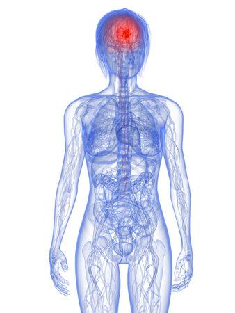 metastase: transparent female body with tumor in brain