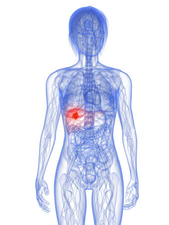 metastase: transparent female body with tumor in liver Stock Photo