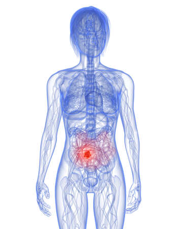 metastasis: transparent