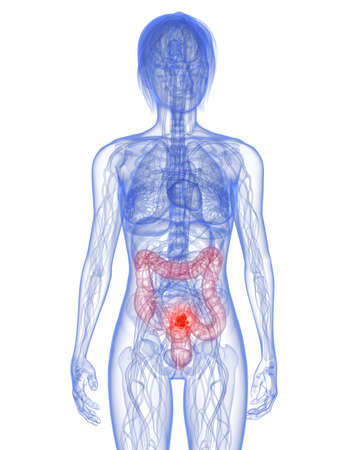 metastase: transparent female body with tumor in colon
