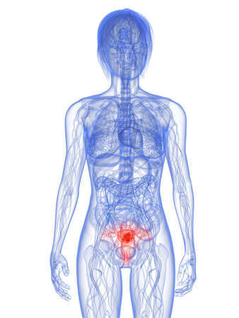 tumor: transparent female body with tumor in uterus