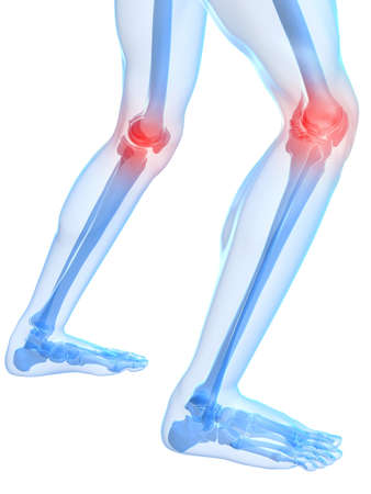 bone: skeletal knees with painful joints Stock Photo
