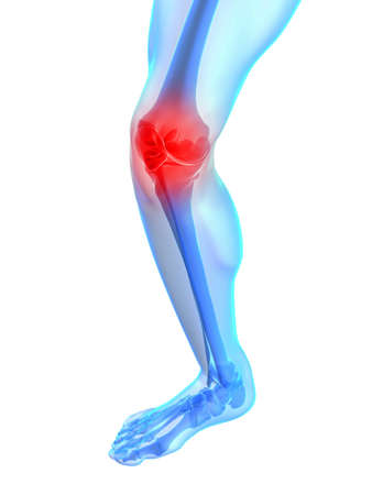 skeletal knee with painful joint