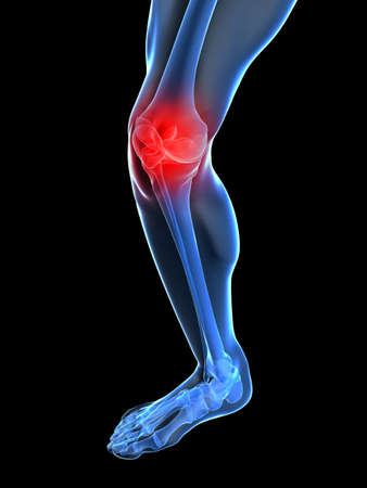 ache:  skeletal knee with painful joint