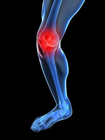 skeletal Knie mit schmerzhaften joint  Standard-Bild