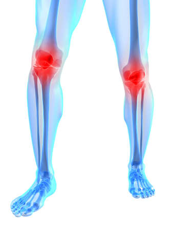 anatomy leg: skeletal knees with painful joints Stock Photo