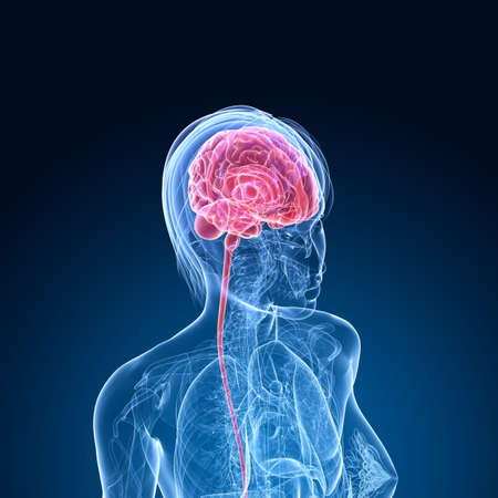 female brain cancer  photo