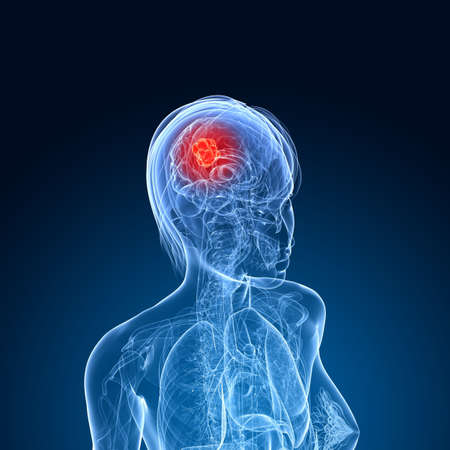 female brain cancer  Stock Photo - 7299884