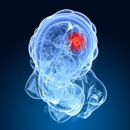 vascular: female brain cancer