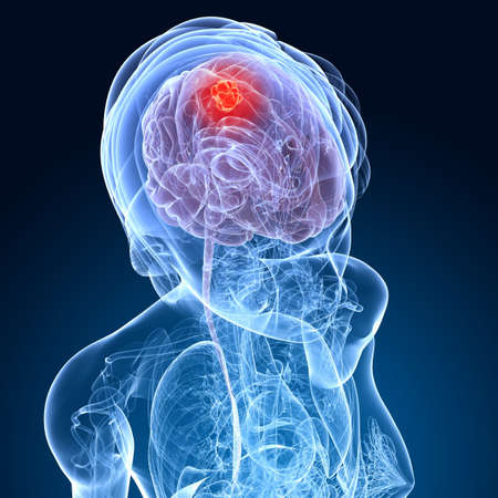female brain cancer  photo