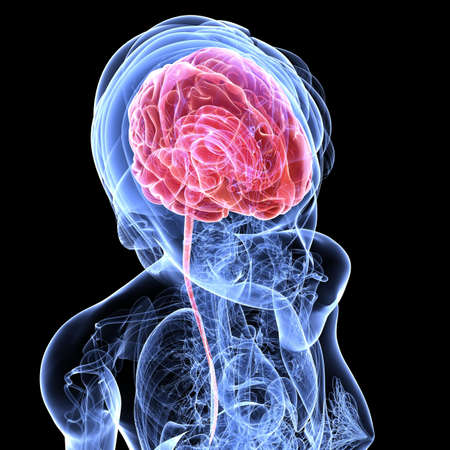 female brain cancer Stock Photo - 7299929