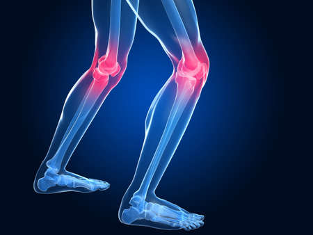 leg pain: skeletal knees with painful joints Stock Photo