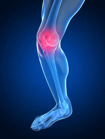 legs: skeletal knee with painful joint