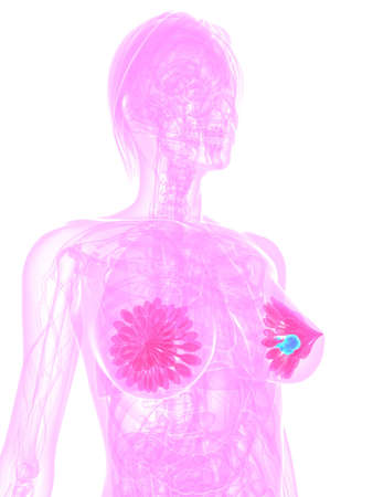 breast cancer photo