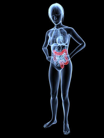 bellyache - female anatomy with highlighted colon Stock Photo