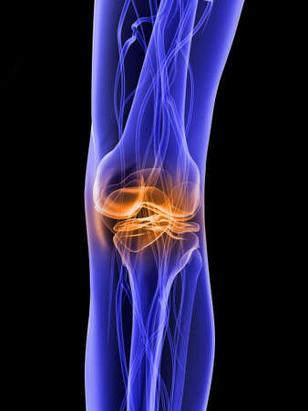 skeletal knee with painful joint Stock Photo - 7300142