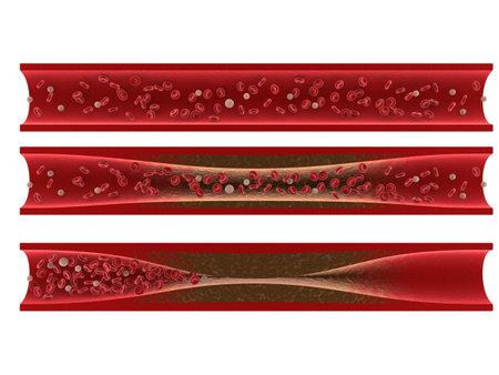artériosclérose