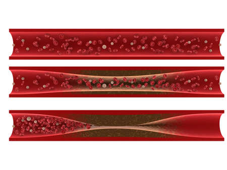 blockage: arteriosclerosis