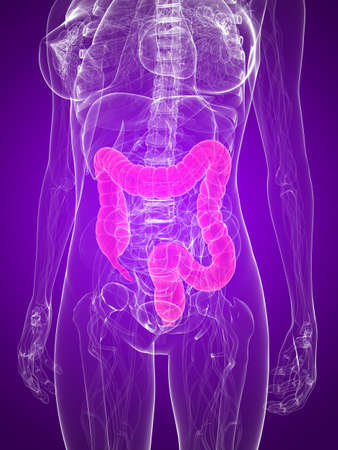 metastase: female anatomy with highlighted colon