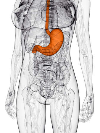 metastasis:  female anatomy with highlighted stomach