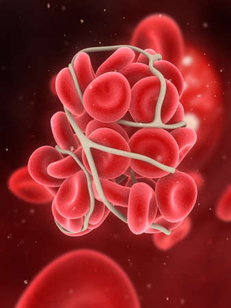 venous: blood clot  Stock Photo