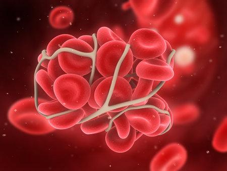 blood clot  Stock Photo