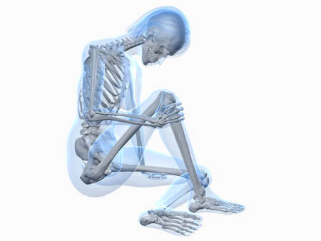 the skeleton: sitting female skeleton with painful knee