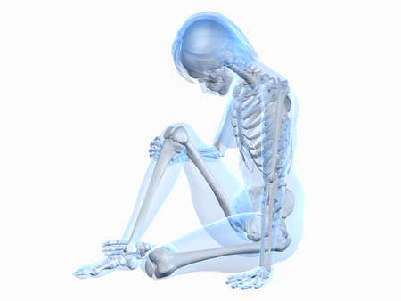 sitting female skeleton with painful knee photo