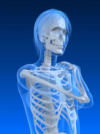 female skeleton with painful shoulder photo