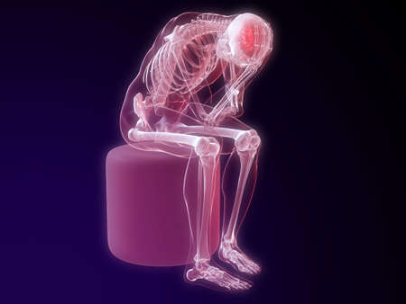sitting skeleton with headachemigraine photo
