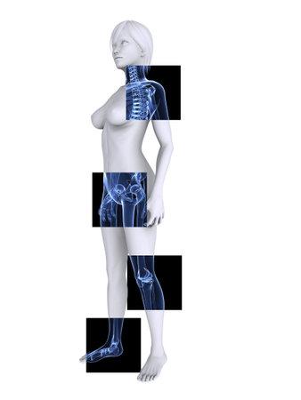 osteoporosis: x las articulaciones saludables--ray femenina esqueleto -