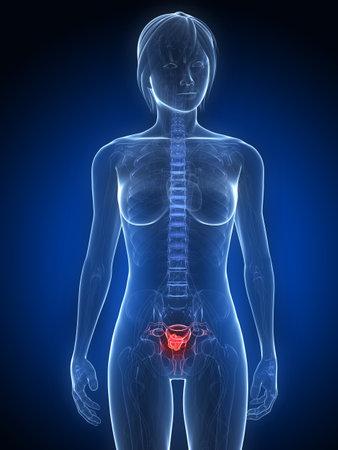 female anatomy with tumor in uterus Stock Photo - 7249264