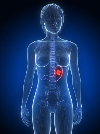 metastase: female anatomy with tumor in stomach Stock Photo