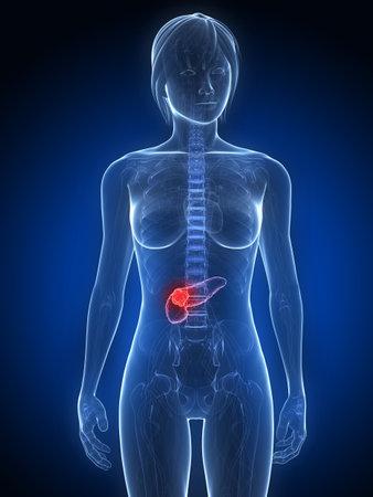 metastase:  female anatomy with tumor in pancreas
