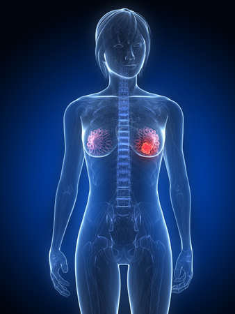 female anatomy with tumor in breast photo